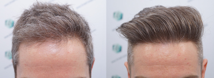 Technical Hair Graft FUE 3010 Follicles (6843 Hairs)